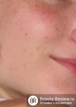 голое лицо